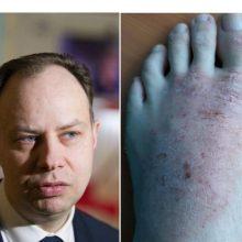 Nuo žaizdų kenčiantis vyras negali įsigyti vaistų ir keikia A. Verygą