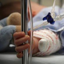 Į reanimaciją pateko karšta arbata apsiplikęs vienerių metų berniukas