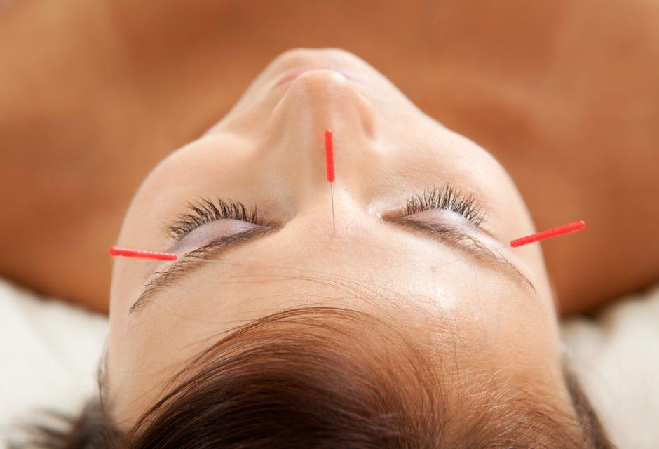 Adatėlėmis badant akupunktūros mitą