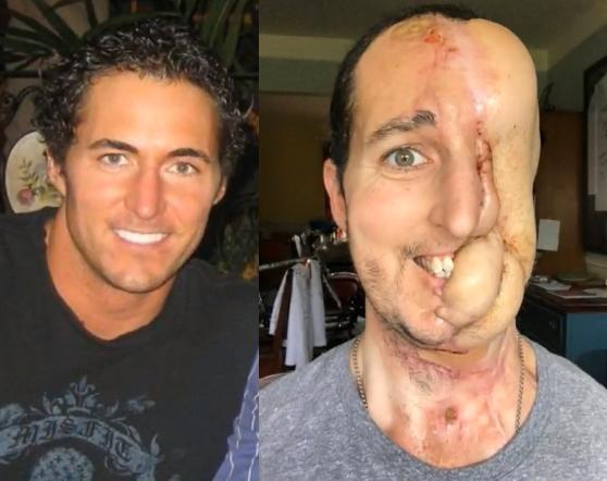 Vyras prarado pusę veido, bet viltingai žiūri į ateitį (gali šokiruoti)