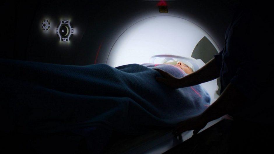 Tyrimas: įveikus vieną vėžį, gali grėsti kitas
