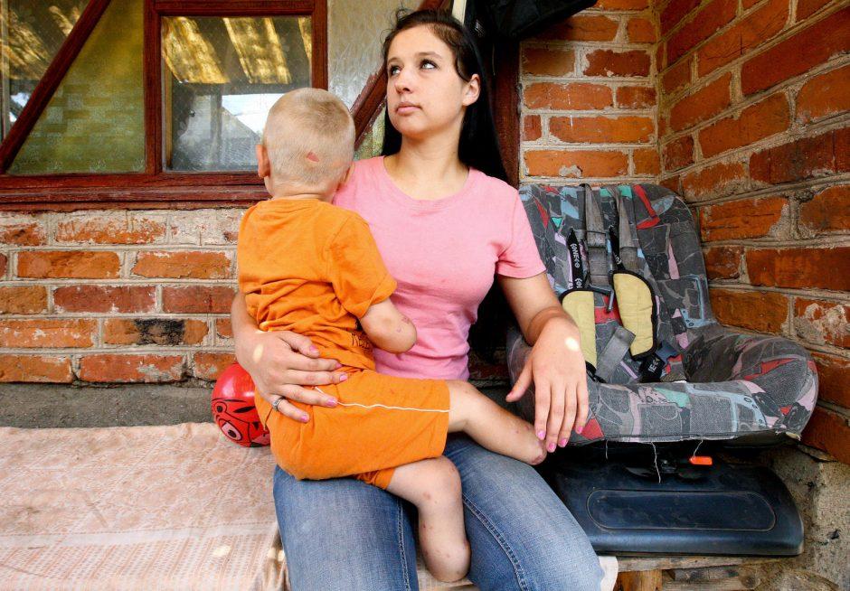 Dvikovą su mirtimi laimėjęs vaikas liko be rankų ir kojų