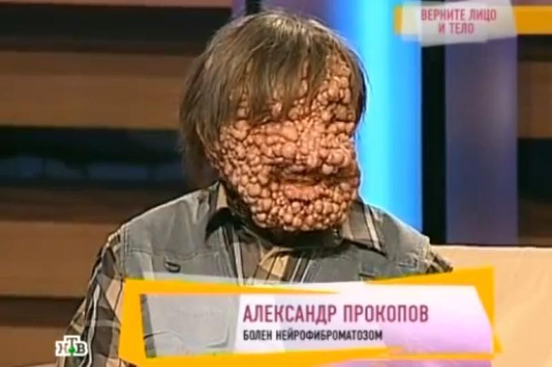 Reta liga vyrą pavertė panašų į siaubo filmo personažą