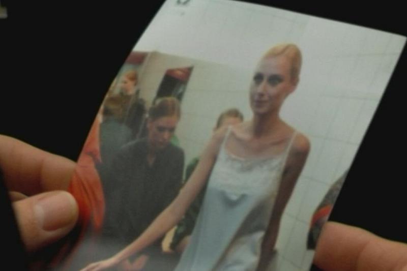 Viešumos vengianti V. Repčenkaitė-Vosylė serga anoreksija?
