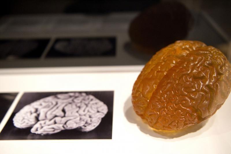 Patikimiausias būdas intelektui išmatuoti – smegenų skenavimas?