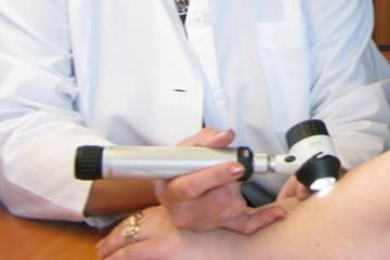 Kauniečiai vis dažniau serga odos vėžiu