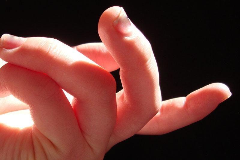Pikete kurtieji reikalavo daugiau laidų su vertimu į gestų kalbą