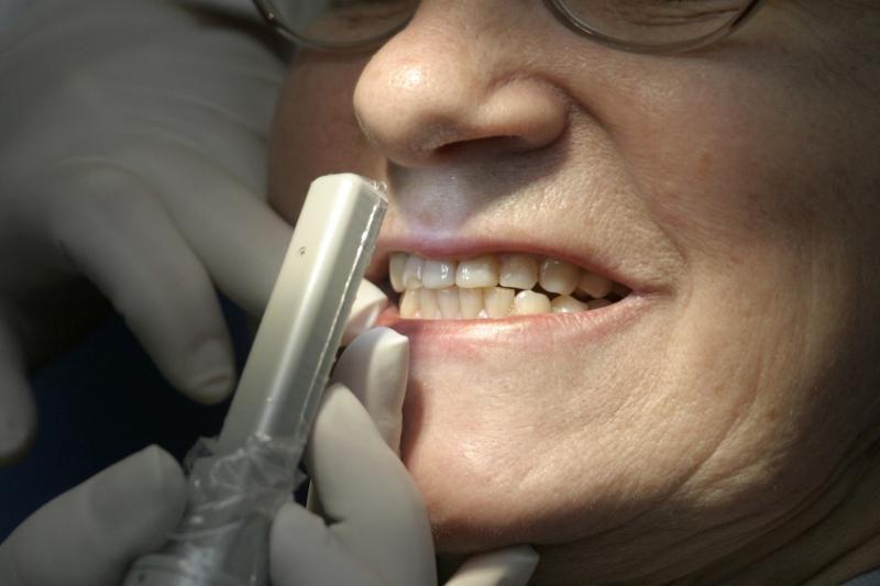 Reguliarūs vizitai pas dantų gydytoją padeda išvengti širdies smūgio
