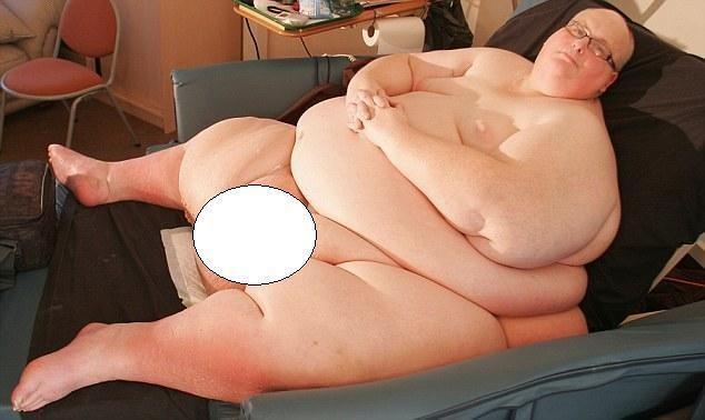 """Storiausiam vyrui, svėrusiam 445 kg, reikia pašalinti """"odos perteklių"""""""