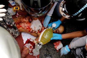 Venesueloje protestų sūkuryje žuvo paauglys
