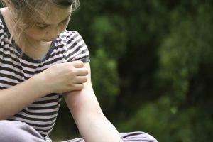 Vabzdžių įkandimai: kaip nuraminti sudirgintą odą