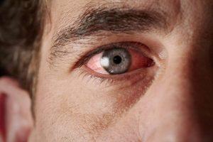 Kaip išsaugoti sveikas akis? (šeši naudingi patarimai)