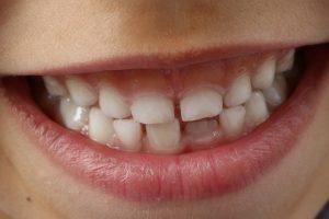 Kovo 20-oji – Pasaulinė burnos sveikatos diena
