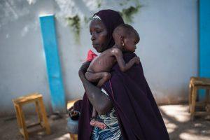 Nigerijoje nuo bado netrukus gali mirti 75 tūkst. vaikų