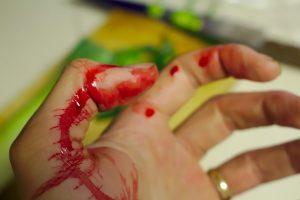 Telšiuose neblaivi moteris vyrui nupjovė pirštą