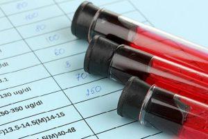 ŽIV nesitraukia: per metus vis dar užsikrečia apie 2,5 mln. žmonių