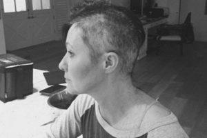 """""""Beverli Hilso"""" žvaigždė paviešino kovą su krūties vėžiu"""