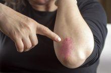 Žvynelinė – sudėtinga liga, susijusi su imuniteto ir kraujagyslių pažeidimais