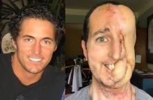 Vyras prarado pusę veido, bet viltingai žiūri į ateitį <span style=color:red;>(gali šokiruoti)</span>